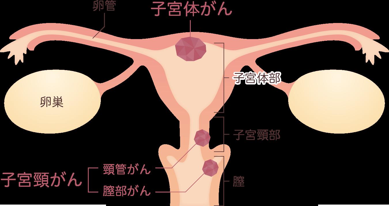 症状 子宮 癌